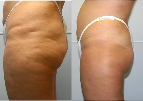 cellulite creme stiftung warentest